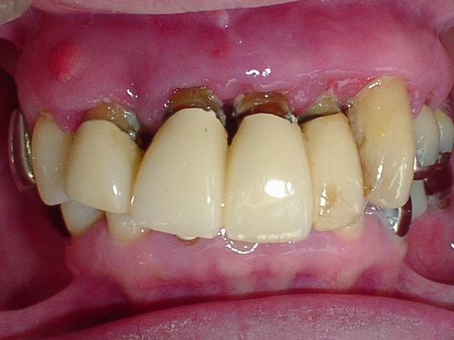 が 腫れ 痛い 歯茎 て